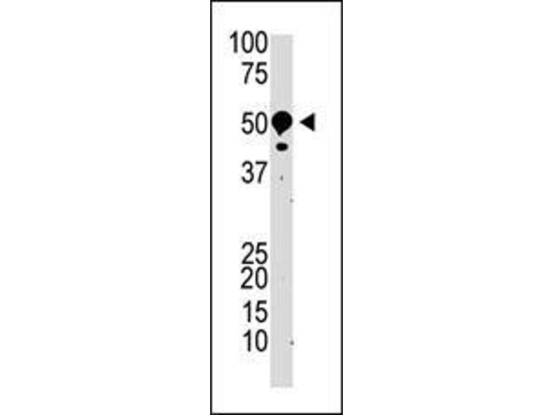Western Blotting (WB) image for anti-Suppressor of Variegation 3-9 Homolog 2 (Drosophila) (SUV39H2) (AA 93-122), (N-Term) antibody (ABIN388081)