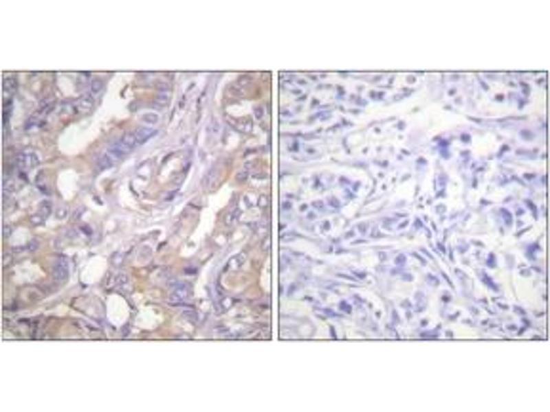 Immunohistochemistry (IHC) image for anti-V-Raf Murine Sarcoma 3611 Viral Oncogene Homolog (ARAF) (AA 276-325) antibody (ABIN1532501)