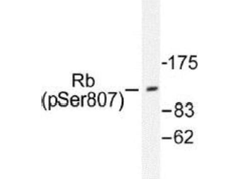 Western Blotting (WB) image for anti-Retinoblastoma 1 (RB1) antibody (ABIN4349475)