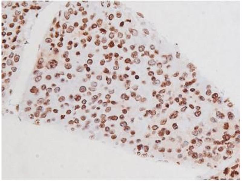 Immunohistochemistry (IHC) image for anti-Mast/stem Cell Growth Factor Receptor (KIT) (pTyr721) antibody (ABIN6256004)