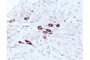 Immunohistochemistry (Paraffin-embedded Sections) (IHC (p)) image for anti-NOS1 antibody (Nitric Oxide Synthase 1, Neuronal) (AA 1095-1289) (ABIN967894)