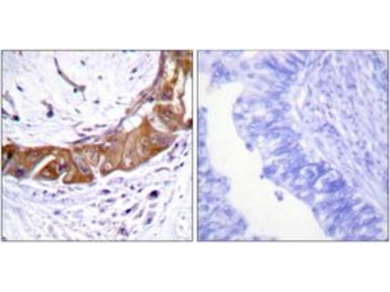 Immunohistochemistry (IHC) image for anti-Interleukin-1 Receptor-Associated Kinase 1 (IRAK1) (pThr100), (AA 66-115) antibody (ABIN1531672)