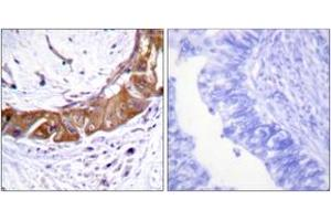 Immunohistochemistry (IHC) image for anti-IRAK1 antibody (Interleukin-1 Receptor-Associated Kinase 1) (pThr100) (ABIN1531672)