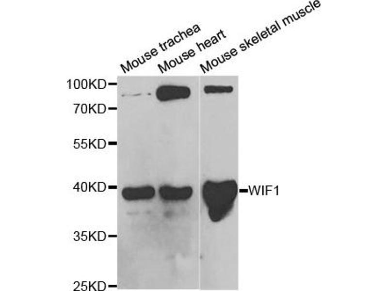 Western Blotting (WB) image for anti-WNT Inhibitory Factor 1 (WIF1) antibody (ABIN1876574)