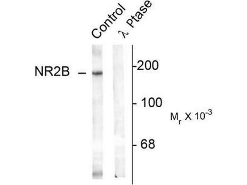 Image no. 1 for anti-Glutamate Receptor, Ionotropic, N-Methyl D-Aspartate 2B (GRIN2B) (pTyr1336) antibody (ABIN372686)