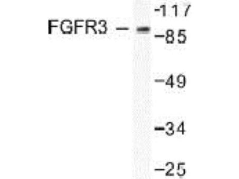 Western Blotting (WB) image for anti-FGFR3 antibody (Fibroblast Growth Factor Receptor 3) (ABIN407668)