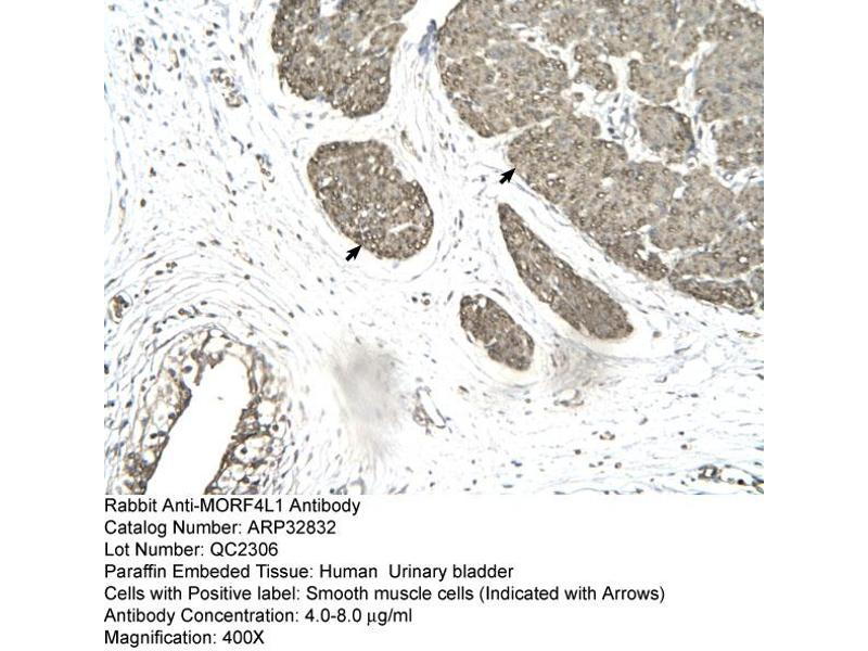 Immunohistochemistry (IHC) image for anti-Mortality Factor 4 Like 1 (MORF4L1) (Middle Region) antibody (ABIN2777616)