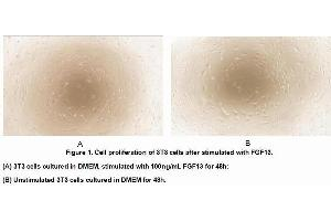 Image no. 2 for Fibroblast Growth Factor 13 (FGF13) (AA 1-192) (Active) protein (His tag) (ABIN6239865)