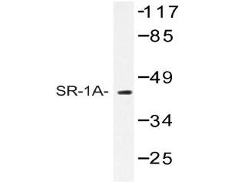image for anti-Serotonin Receptor 1A antibody (HTR1A) (ABIN272268)