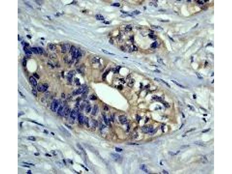 Immunohistochemistry (IHC) image for anti-PAK1 antibody (P21-Activated Kinase 1) (N-Term) (ABIN189638)