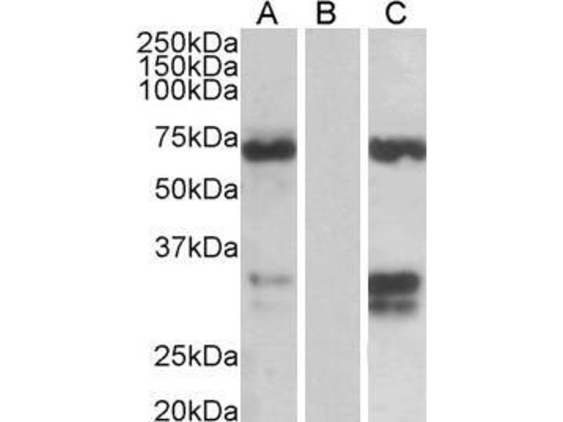 Western Blotting (WB) image for anti-FOXC2 antibody (Forkhead Box C2 (MFH-1, Mesenchyme Forkhead 1)) (C-Term) (ABIN185029)