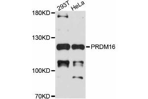 Image no. 1 for anti-PR Domain Containing 16 (PRDM16) antibody (ABIN4904846)