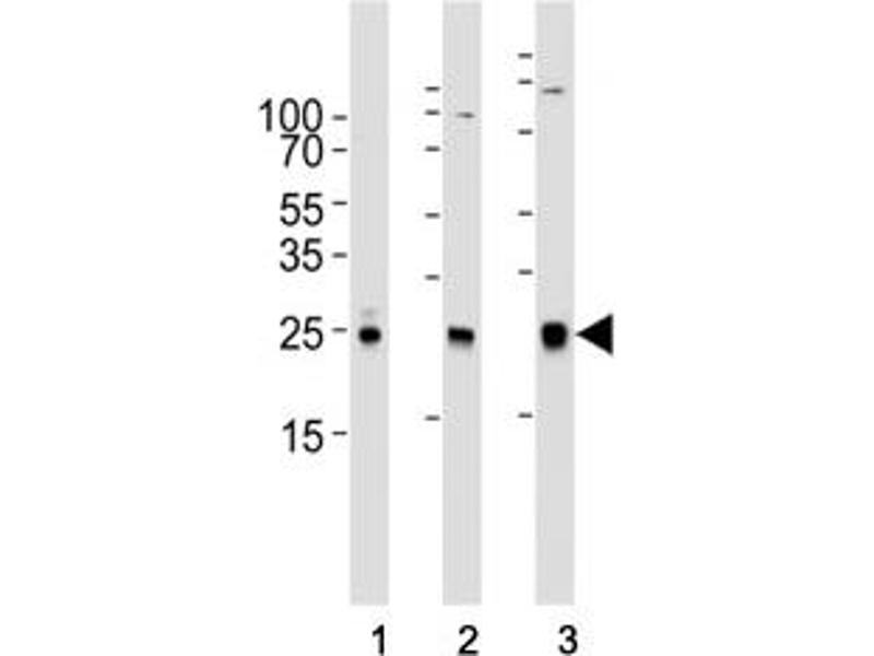 Western Blotting (WB) image for anti-RAC1 antibody (ABIN3032428)