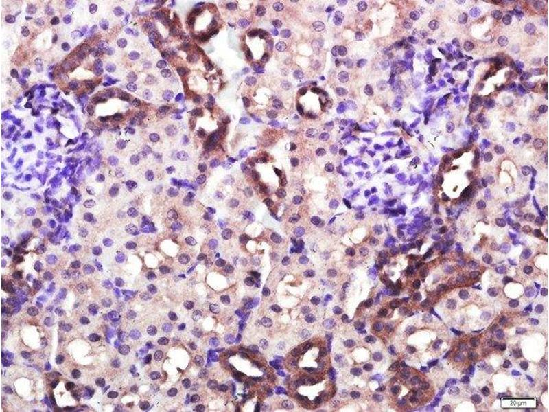 Immunohistochemistry (Paraffin-embedded Sections) (IHC (p)) image for anti-CD4 antibody (CD4 Molecule) (AA 420-457) (ABIN671376)