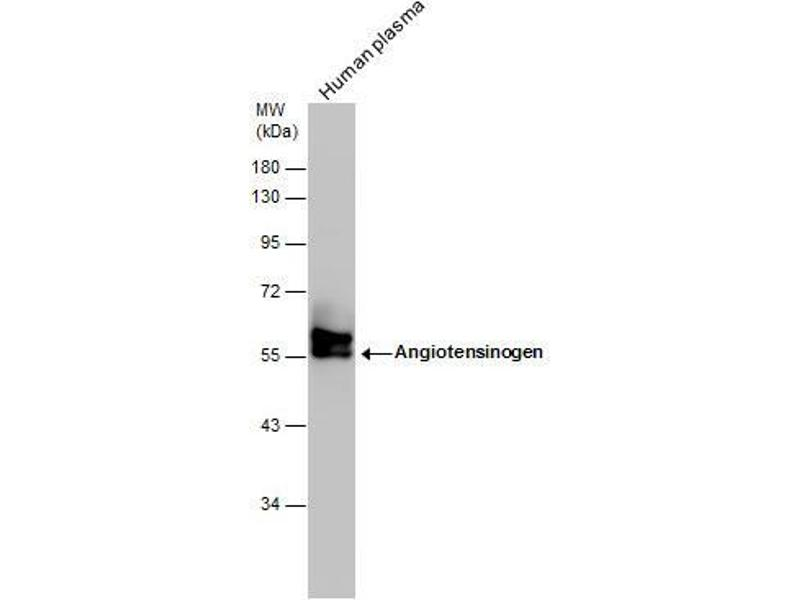 Western Blotting (WB) image for anti-AGT antibody (Angiotensinogen (serpin Peptidase Inhibitor, Clade A, Member 8)) (Center) (ABIN2855709)