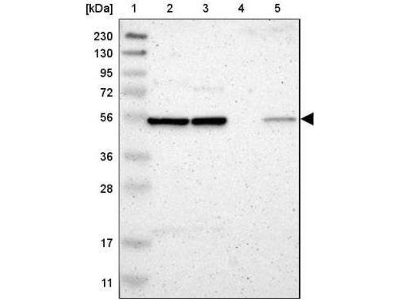 Western Blotting (WB) image for anti-Golgi Membrane Protein 1 (GOLM1) antibody (ABIN4315385)