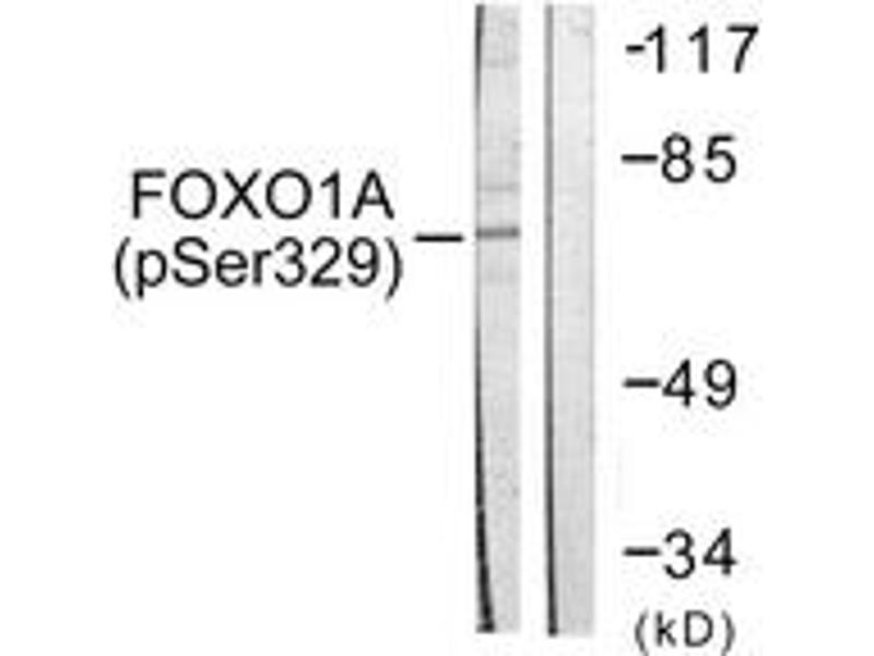 Western Blotting (WB) image for anti-Forkhead Box O1 (FOXO1) (AA 295-344), (pSer329) antibody (ABIN1531321)