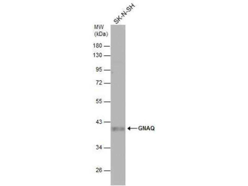 Western Blotting (WB) image for anti-GNAQ antibody (Guanine Nucleotide Binding Protein (G Protein), Q Polypeptide) (Center) (ABIN441968)