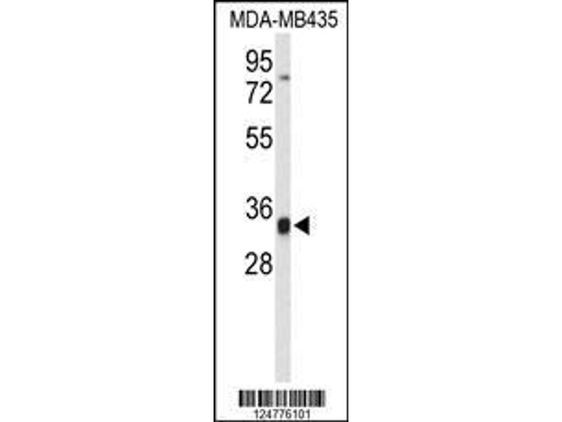 Western Blotting (WB) image for anti-TCF3 (E2A) Fusion Partner (In Childhood Leukemia) (TFPT) (AA 60-88), (N-Term) antibody (ABIN653252)