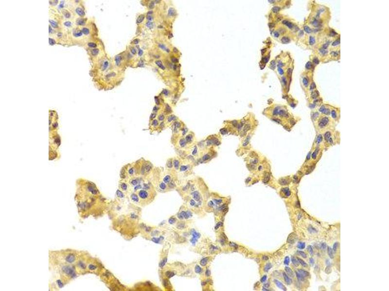 Immunohistochemistry (IHC) image for anti-TRAF2 antibody (TNF Receptor-Associated Factor 2) (ABIN1875191)