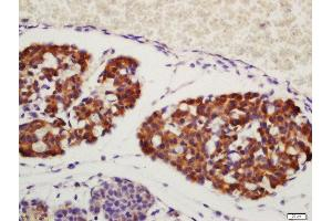 Immunohistochemistry (Paraffin-embedded Sections) (IHC (p)) image for anti-Amphiregulin antibody (AREG) (AA 100-150) (ABIN704996)