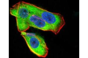 Immunofluorescence (IF) image for anti-Uncoupling Protein 2 (Mitochondrial, Proton Carrier) (UCP2) antibody (ABIN4364245)