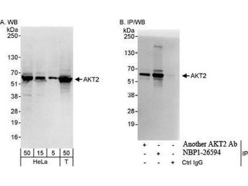 Western Blotting (WB) image for anti-AKT2 antibody (V-Akt Murine Thymoma Viral Oncogene Homolog 2) (AA 431-481) (ABIN439744)