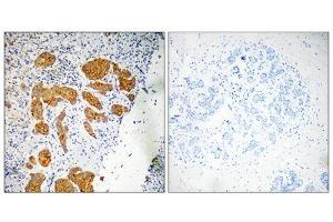 Image no. 1 for anti-Chemokine-Like Factor (CKLF) (Internal Region) antibody (ABIN1851120)