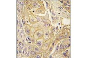 Immunohistochemistry (Paraffin-embedded Sections) (IHC (p)) image for anti-EPH Receptor B2 antibody (EPHB2) (ABIN359814)
