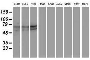 Image no. 3 for anti-Kelch-Like ECH-Associated Protein 1 (KEAP1) antibody (ABIN1499016)