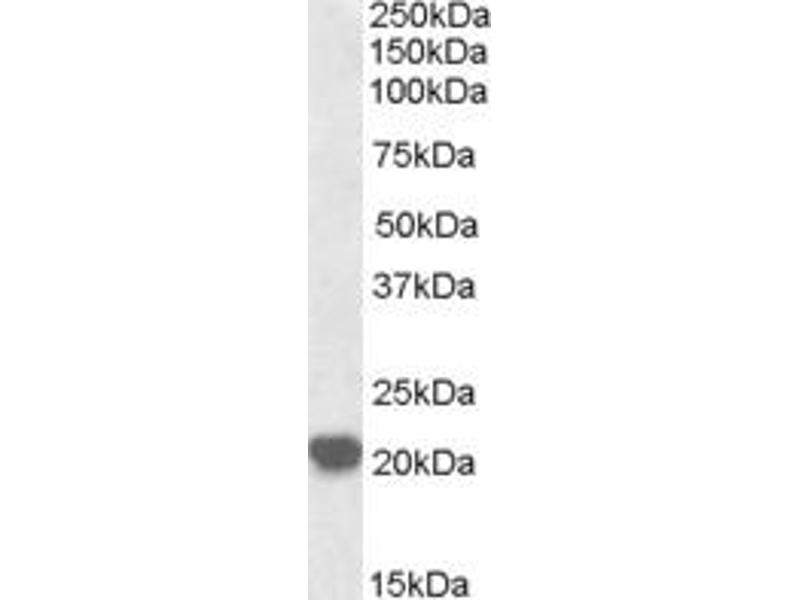 Western Blotting (WB) image for anti-RAC2 antibody (Ras-Related C3 Botulinum Toxin Substrate 2 (Rho Family, Small GTP Binding Protein Rac2)) (ABIN2496273)