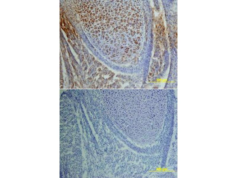 Immunohistochemistry (IHC) image for anti-Epidermal Growth Factor Receptor (EGFR) (pTyr1173) antibody (ABIN4900628)