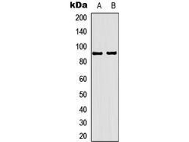 Western Blotting (WB) image for anti-Progesterone Receptor (PGR) (Center) antibody (ABIN3066255)