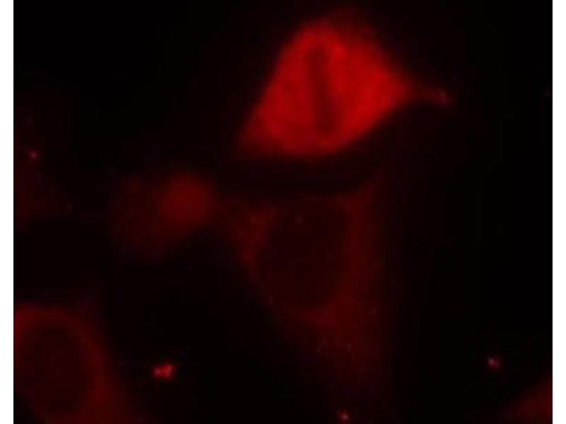 Immunofluorescence (IF) image for anti-MAP2K3 antibody (Mitogen-Activated Protein Kinase Kinase 3) (pSer189) (ABIN257414)