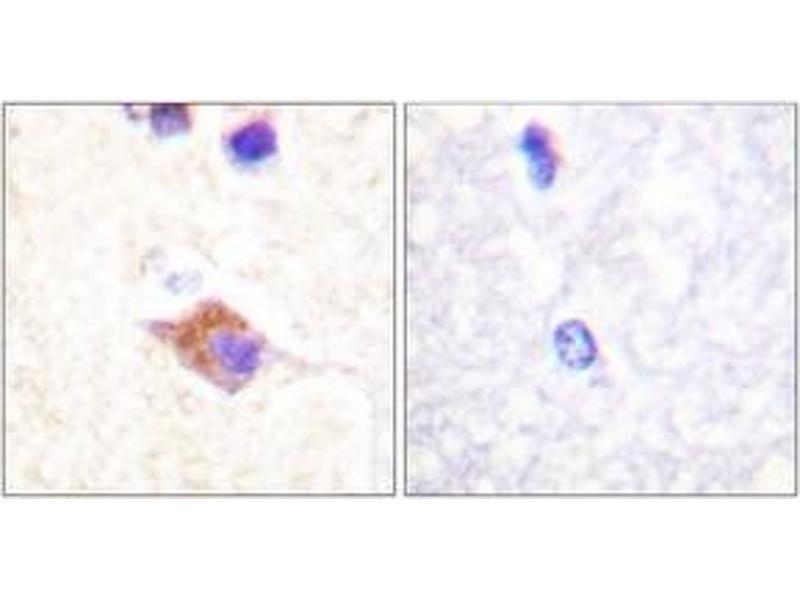 Immunohistochemistry (IHC) image for anti-Phospholipase C gamma 2 antibody (PLCG2) (pTyr1217) (ABIN1531375)