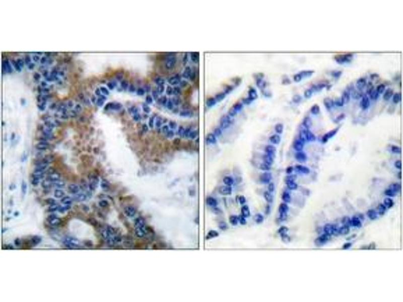 Immunohistochemistry (IHC) image for anti-CrkL antibody (V-Crk Sarcoma Virus CT10 Oncogene Homolog (Avian)-Like) (pTyr207) (ABIN1531223)