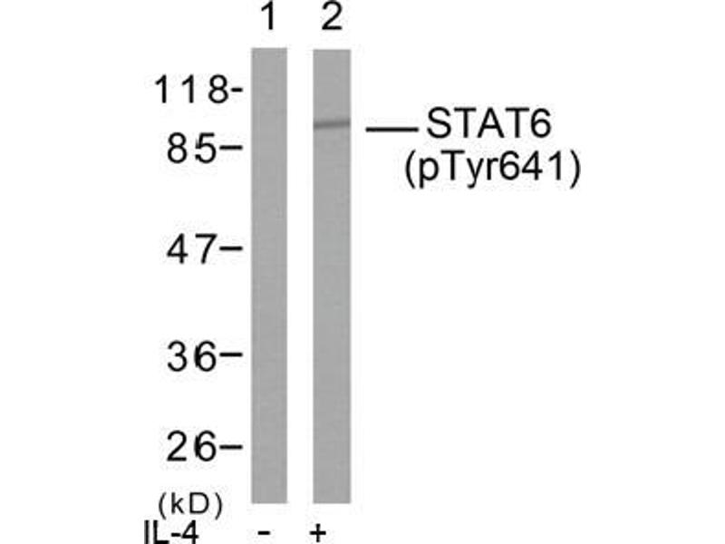 image for anti-STAT6 antibody (Signal Transducer and Activator of Transcription 6, Interleukin-4 Induced) (pTyr641) (ABIN196701)