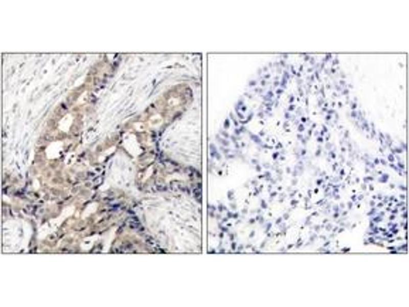 Immunohistochemistry (IHC) image for anti-ABL1 antibody (C-Abl Oncogene 1, Non-Receptor tyrosine Kinase) (pTyr393) (ABIN1531765)