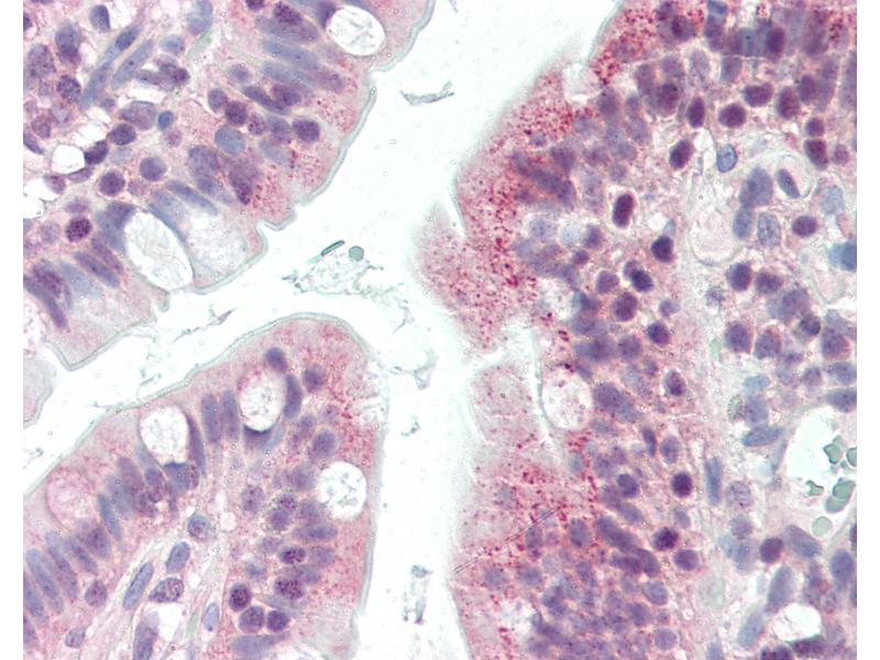 Image no. 3 for anti-Cell Death-Inducing DFFA-Like Effector B (CIDEB) (Internal Region) antibody (ABIN461883)
