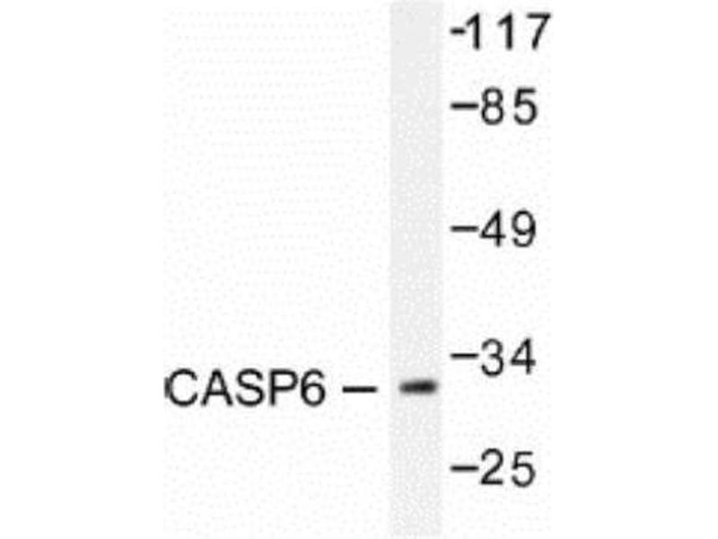 Western Blotting (WB) image for anti-Caspase 6 antibody (Caspase 6, Apoptosis-Related Cysteine Peptidase) (ABIN407883)