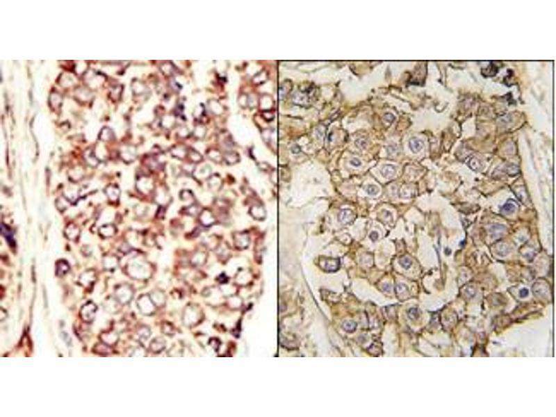 Immunohistochemistry (Paraffin-embedded Sections) (IHC (p)) image for anti-HER2 antibody (V-Erb-B2 erythroblastic Leukemia Viral Oncogene Homolog 2, Neuro/glioblastoma Derived Oncogene Homolog (Avian)) (AA 30-59) (ABIN359840)
