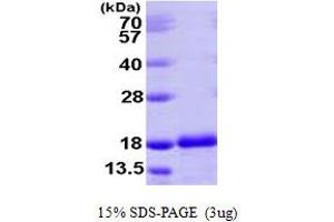 Image no. 1 for Osteocrin (OSTN) (AA 28-133) protein (His tag) (ABIN6386734)