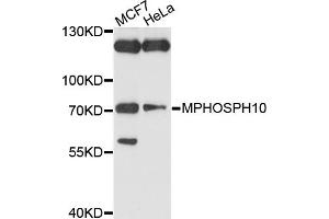 Image no. 2 for anti-M-Phase phosphoprotein 10 (U3 Small Nucleolar Ribonucleoprotein) (MPHOSPH10) antibody (ABIN4904408)