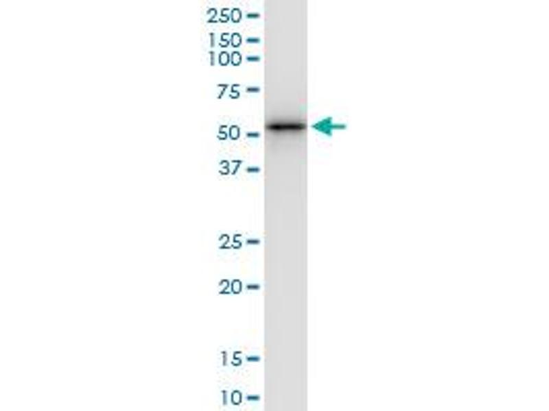 Immunoprecipitation (IP) image for anti-Y Box Binding Protein 2 (YBX2) (AA 1-364), (full length) antibody (ABIN526443)