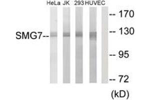 Image no. 1 for anti-Smg-7 Homolog, Nonsense Mediated mRNA Decay Factor (C. Elegans) (SMG7) (AA 521-570) antibody (ABIN1534038)