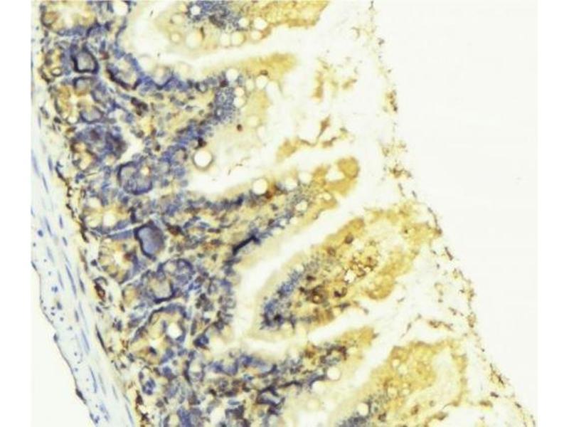 Immunohistochemistry (IHC) image for anti-Kininogen 1 (KNG1) antibody (ABIN6262859)