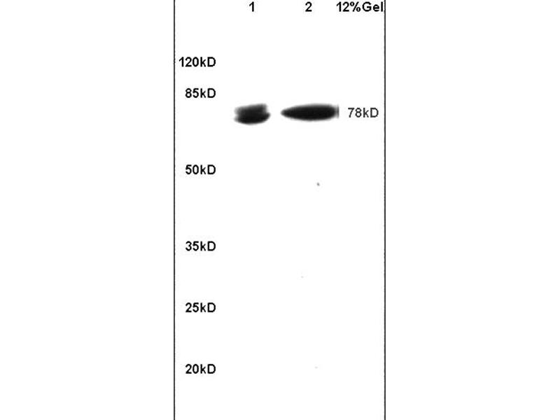 SDS-PAGE (SDS) image for anti-B-Cell CLL/lymphoma 6 (BCL6) (AA 520-560) antibody (ABIN749843)