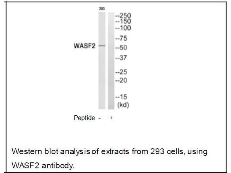 Western Blotting (WB) image for anti-WASF2 antibody (WAS Protein Family, Member 2) (Internal Region) (ABIN2501176)