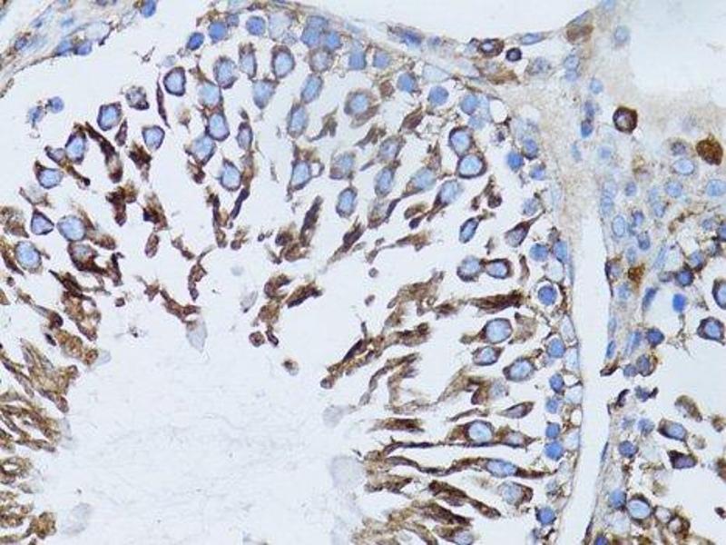 Immunohistochemistry (Paraffin-embedded Sections) (IHC (p)) image for anti-Actin, beta (ACTB) antibody (ABIN3020544)