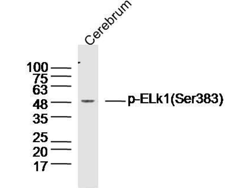 Western Blotting (WB) image for anti-ELK1 antibody (ELK1, Member of ETS Oncogene Family) (pSer383) (ABIN1714907)
